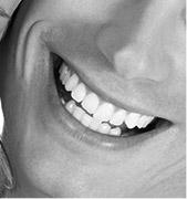 Идеальная улыбка стоматологяи А-Стом